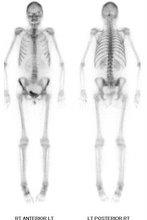 Bone Scan WB WS.jpg