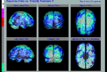 Brain CBF Scan WS.jpg